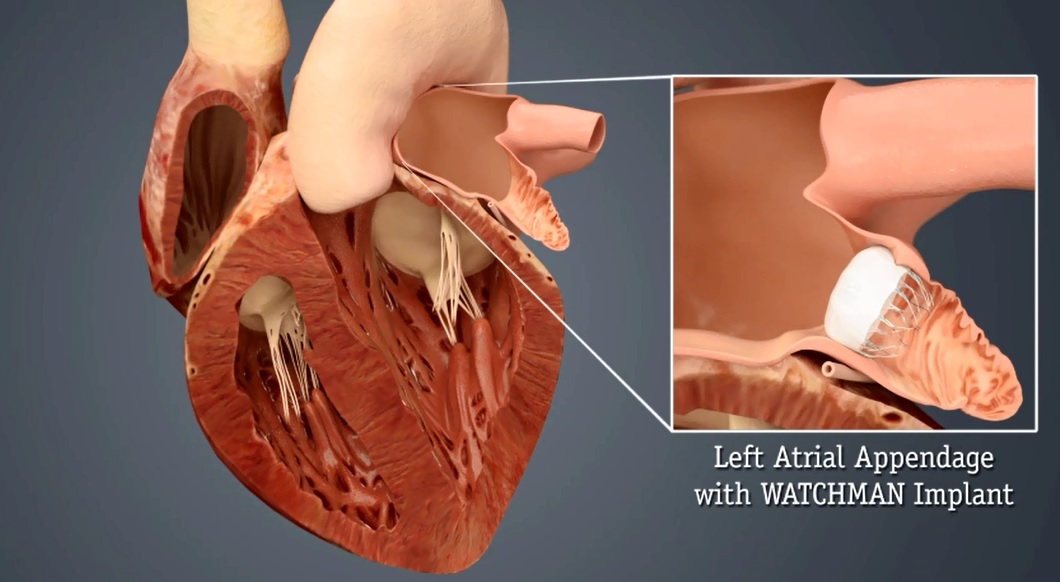 Heart Hospital First In State To Offer Watchman Heart